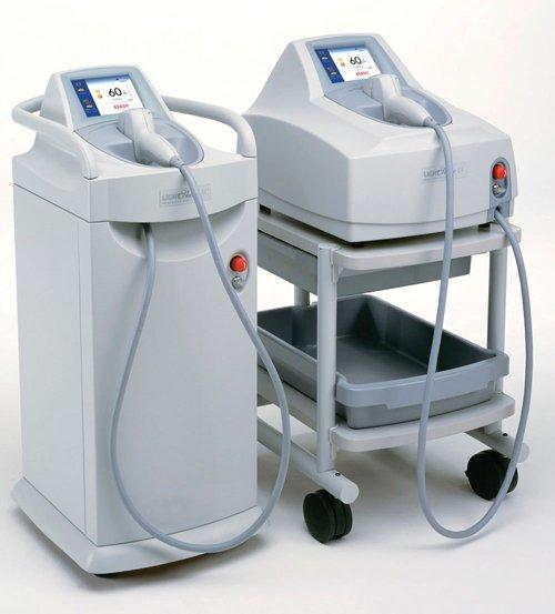 laserska epilacija laser